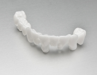 Screw Retained Superstructure Toronto Bridges (occlusal) from DATRON